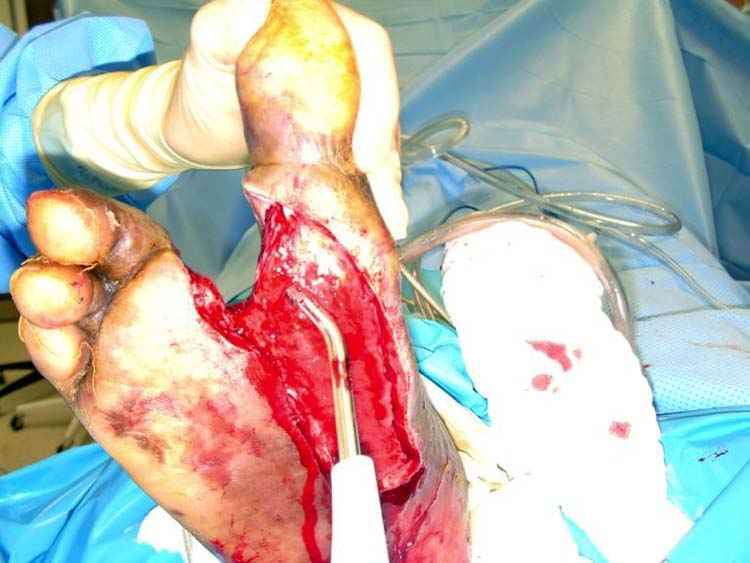 Diabetic Wounds Pictures