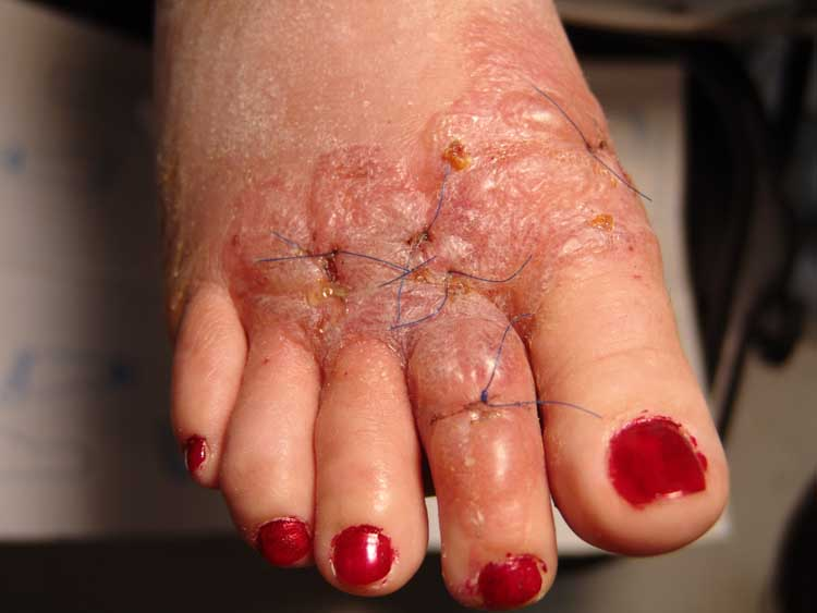 Sulfa Allergies vs. Sulfite Allergies - Healthline