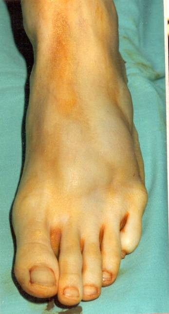 Figure 2 Massive left foot ganglion cyst to the dorsum of the foot.