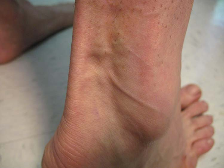 Red rashes on the lower legs - The Clinical Advisor