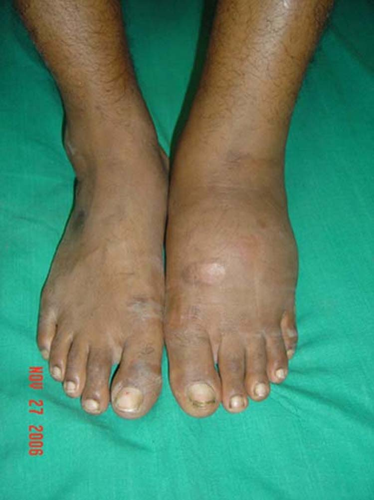 Divergent Lisfranc's Dislocation and Fracture in the Charcot Foot: A case report | The Foot and ...