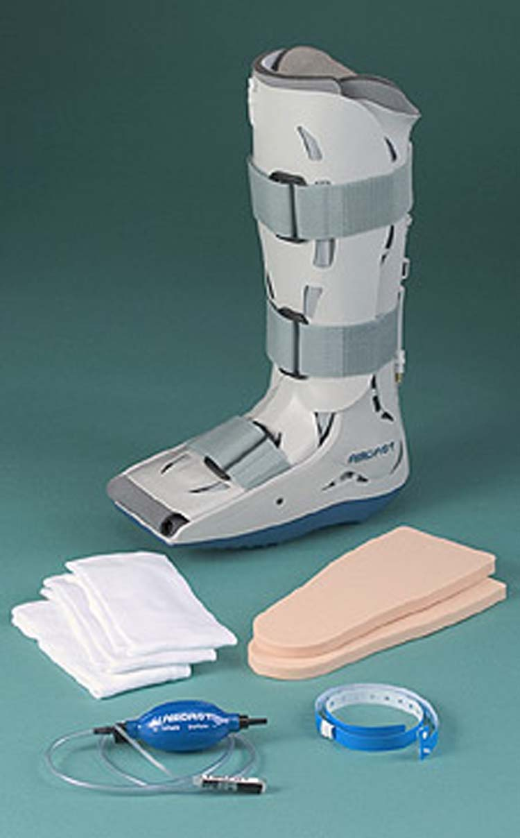Charcot Foot Total Contact Cast