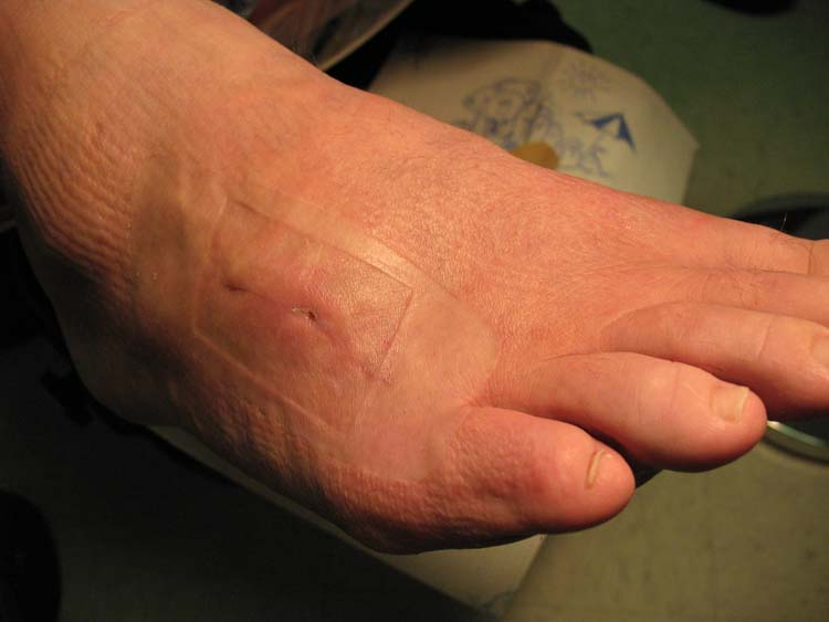 Stingray Envenomation Of The Foot A Case Report The