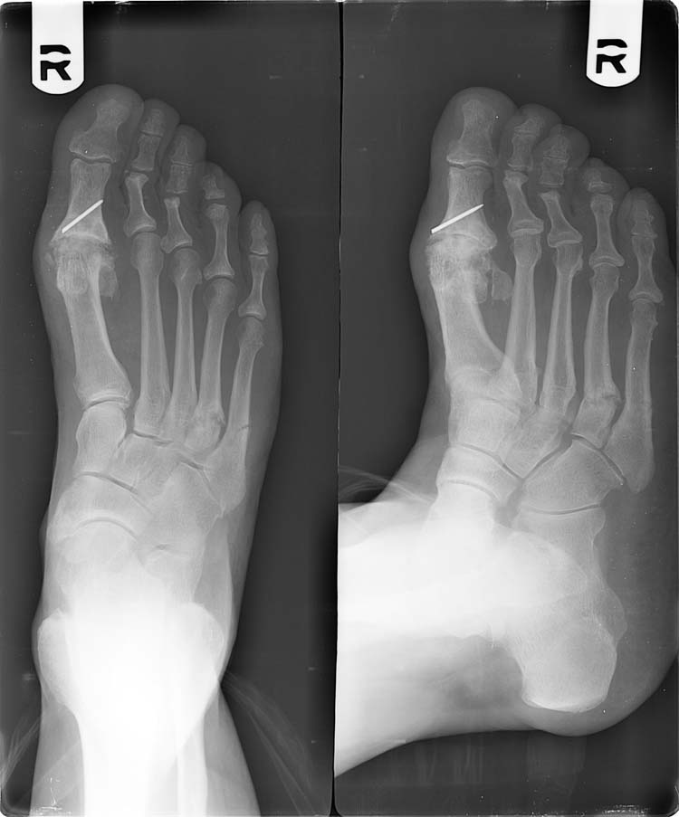 treatment of fourth metatarsal base fracture non-unions in middle, Cephalic vein