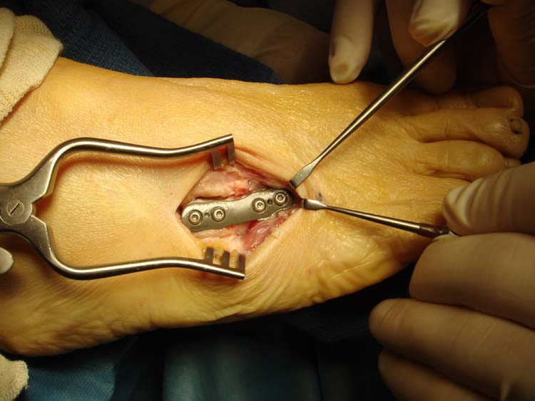 Morton S Shoe Repair