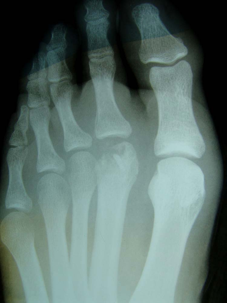 The Second Generation Of Supermodel Is Here Cindy: Freiberg's Infraction Of The Second Metatarsal Head With