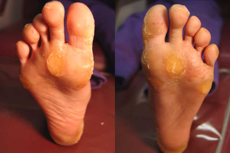 both feet with associated severe nail dystrophy to all fingers and toes.