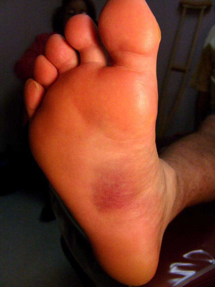 Figure 1 The plantar fascia shows bruising directly along the arch of ...