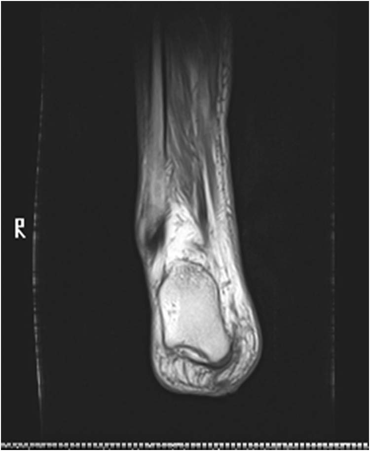 how to read an mri of the ankle