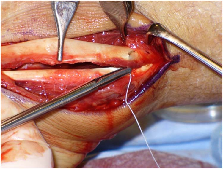 surgical correction of subluxing peroneal tendons utilizing a