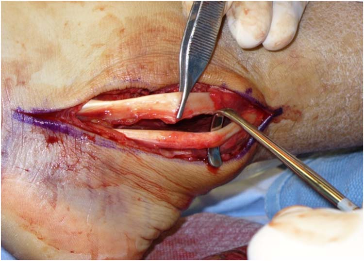 ... Peroneal Tendons Utilizing a Lateral Slip of the Achilles Tendon: A