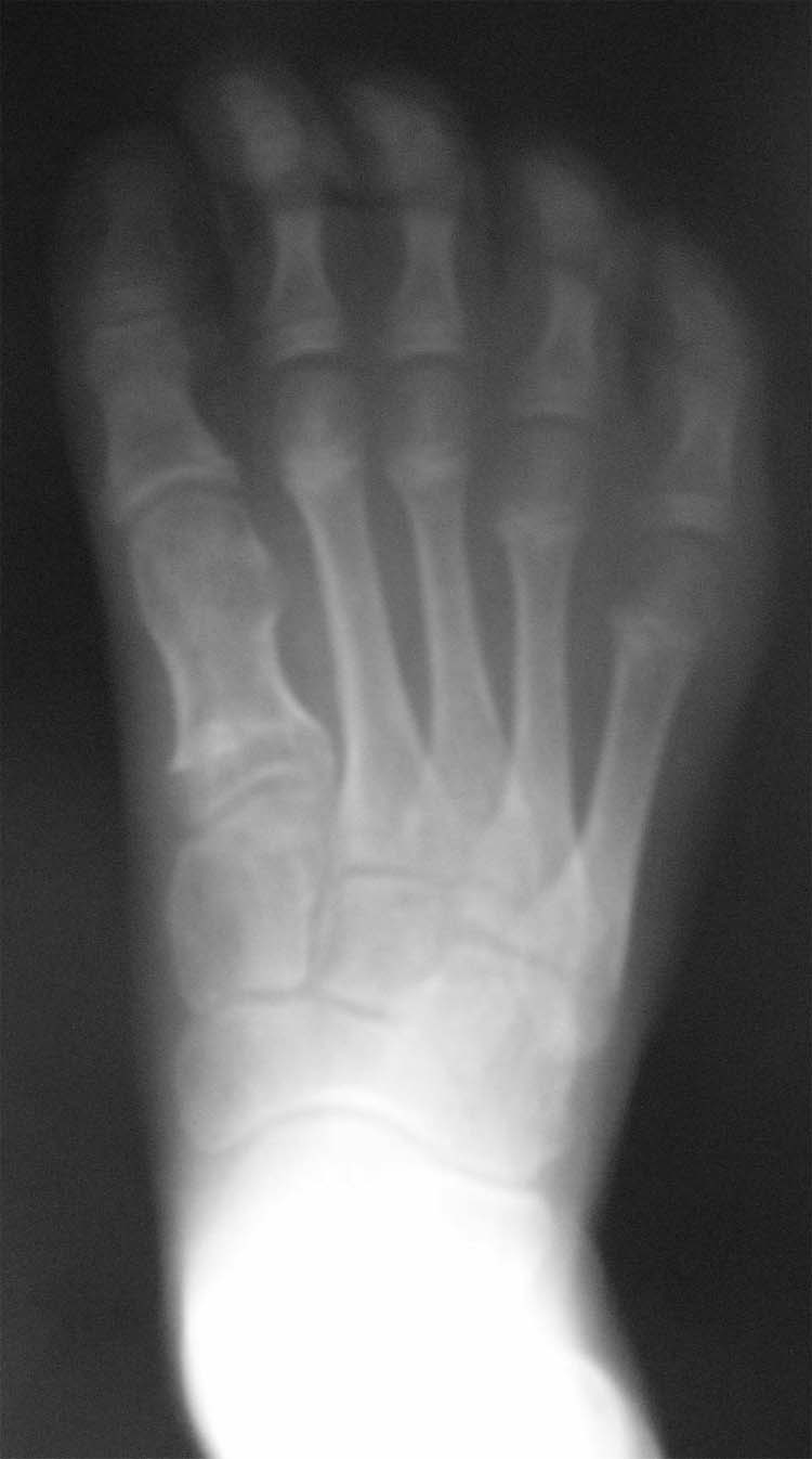 congenital brachymetatarsia Congenital brachymetatarsia a 15-year old patient sought medical advice due to congenital hypoplasia (underdevelopment) of the third and fourth metatarsal bones of the left foot complaints on admission: atypical position of the 3rd of 4th toes, difficulties wearing shoes, pain syndrome.