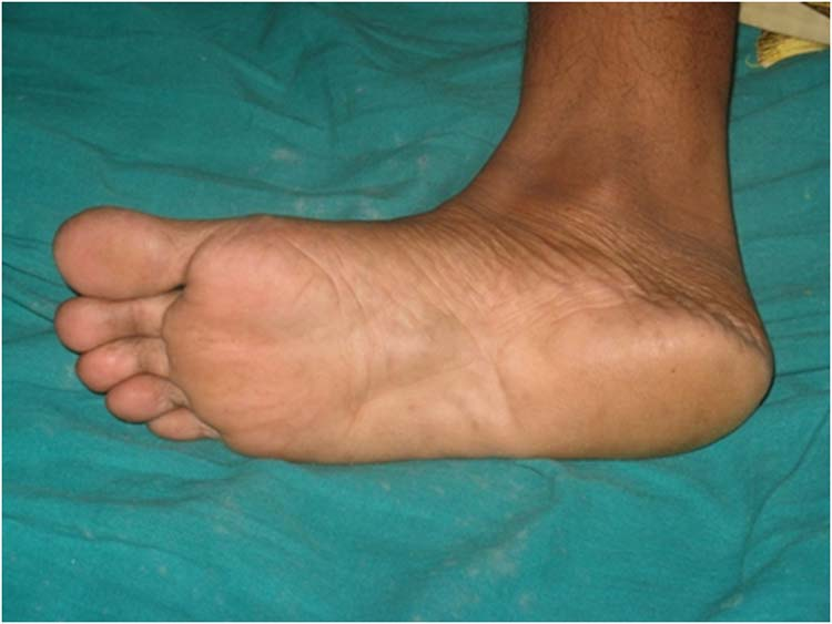 plantar fasciitis local steroid injection