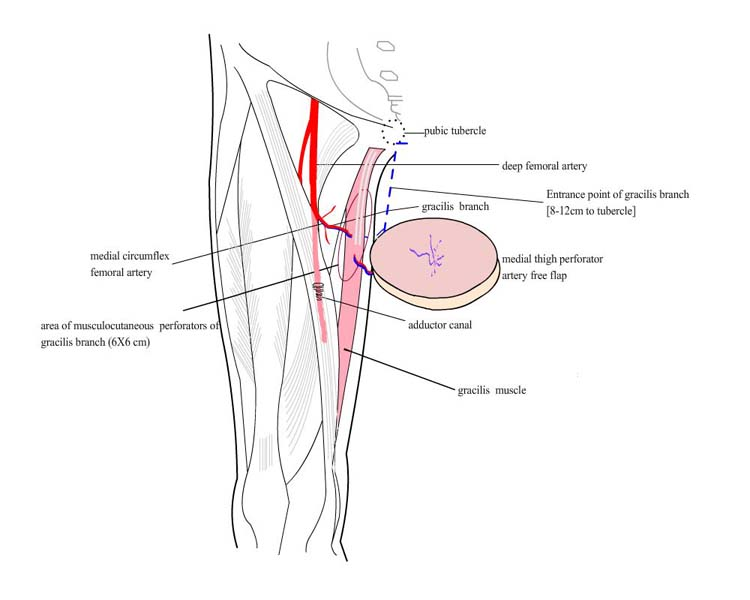 medical circumflex femoral artery perforator flap