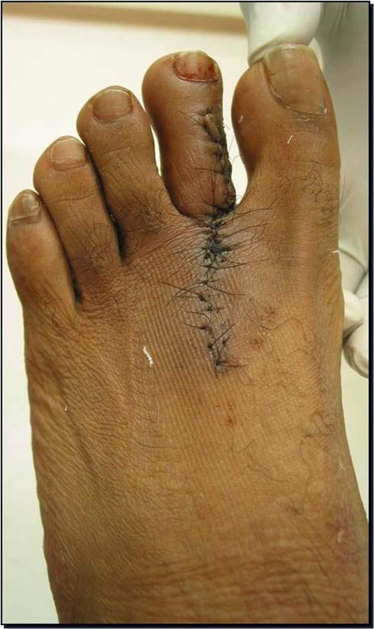 Pathology Outlines - Inverted follicular keratosis