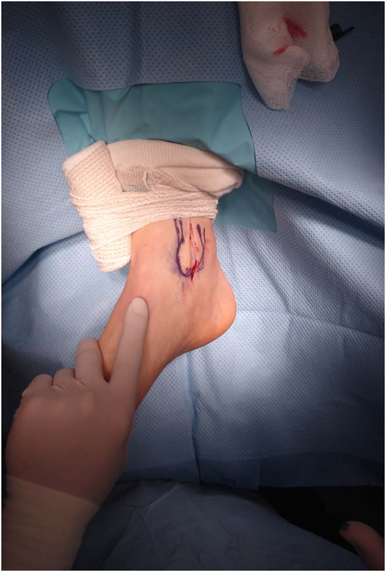 lateral malleolus swelling - photo #29