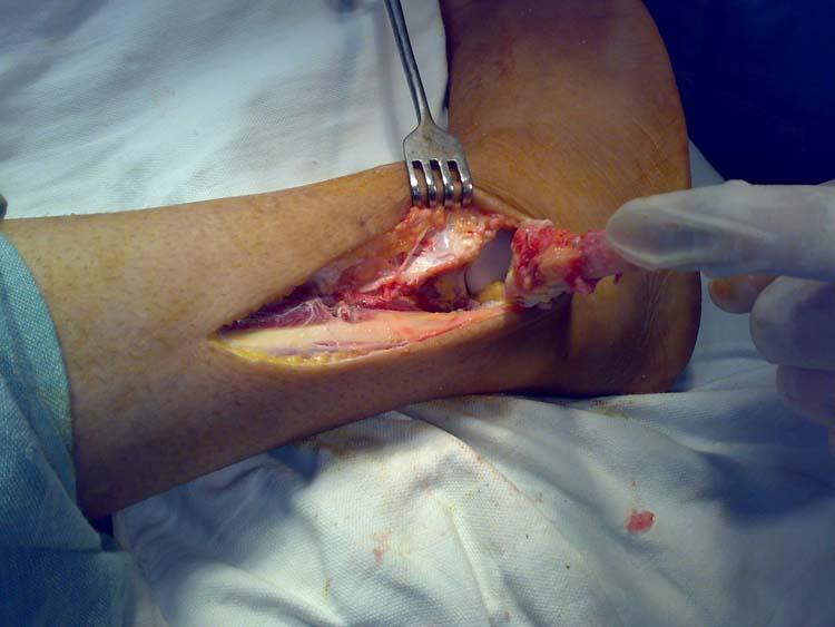 Osteosynthesis screw