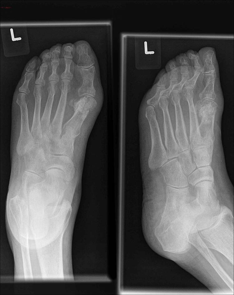 Figure 3 exle of foot x ray eight months after surgery with healed