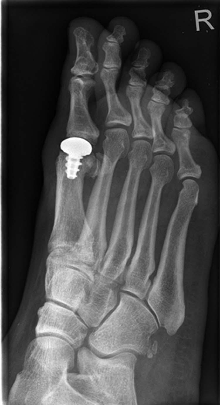 hemicap-verfahren catilage articular prothesis