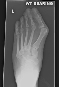 hallux valgus treatment