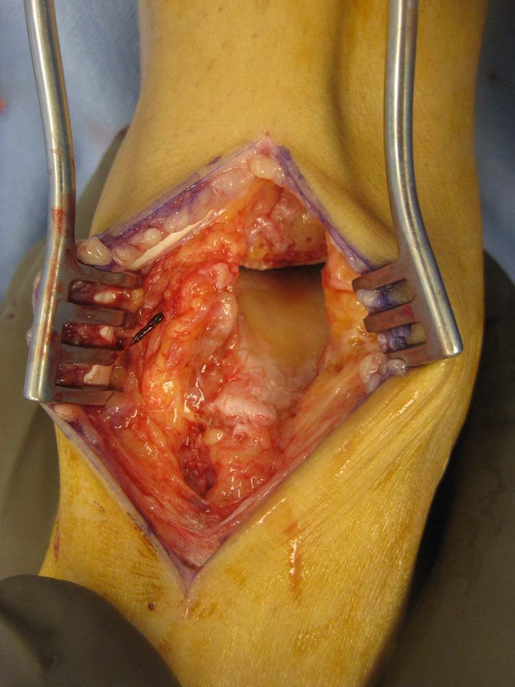 Distraction Arthroplasty The Foot And Ankle Online Journal