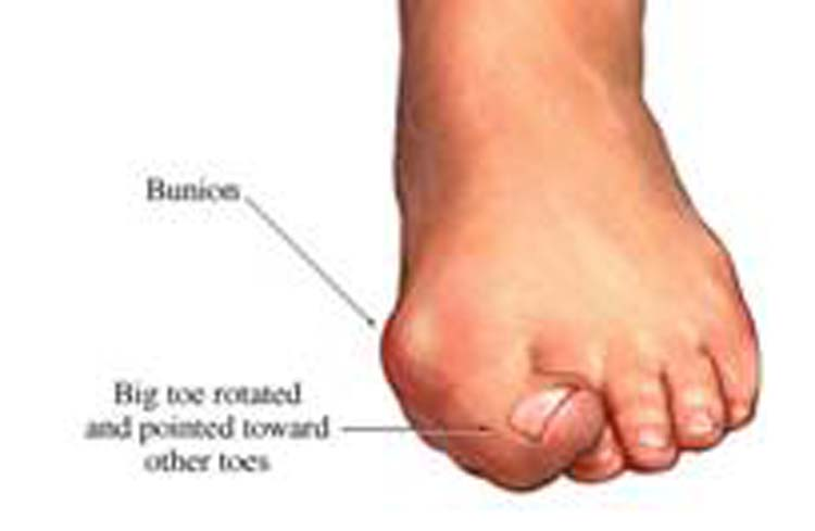 Skin Growth On Toe - Doctor answers on HealthTap