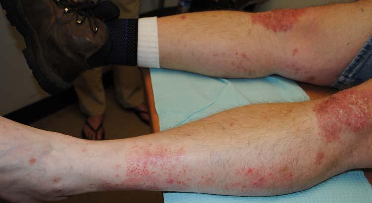 triamcinolone dose for psoriasis