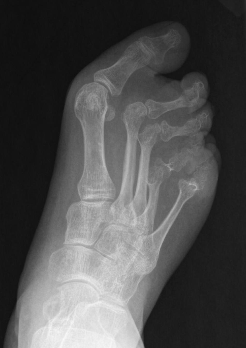 Abnormal Foot X Ray