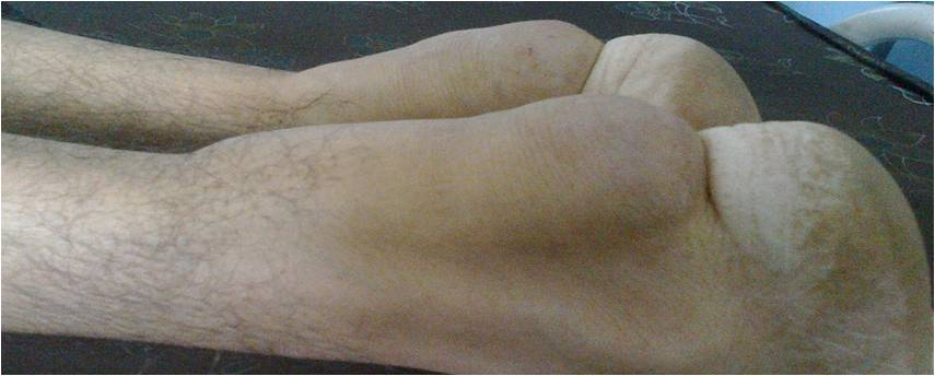 non steroid muscle growth