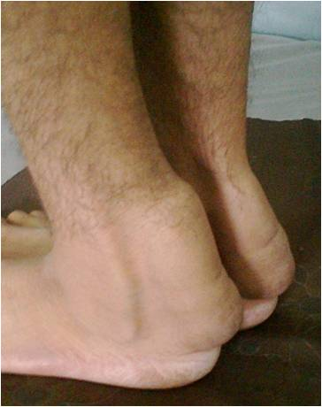 Achilles tendon - Wikipedia