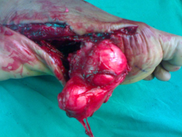Extra-abdominal desmoid tumor of foot: A case report | The Foot ...